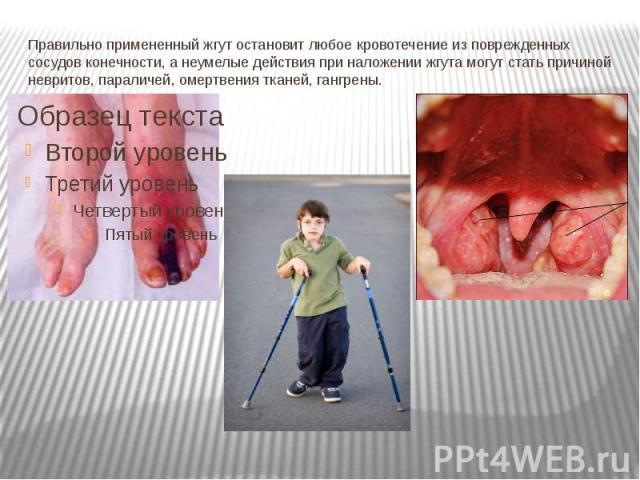 Правильно примененный жгут остановит любое кровотечение из поврежденных сосудов конечности, а неумелые действия при наложении жгута могут стать причиной невритов, параличей, омертвения тканей, гангрены.