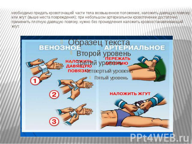 необходимо придать кровоточащей части тела возвышенное положение, наложить давящую повязку или жгут (выше места повреждения); при небольшом артериальном кровотечении достаточно применить плотную давящую повязку. нужно без промедления наложить кровоо…