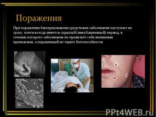 ПораженияПри поражении бактериальными средствами заболевание наступает не сразу,