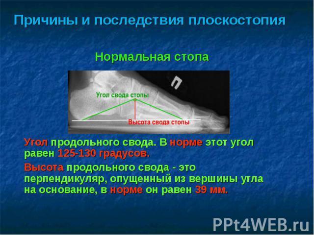 Причины и последствия плоскостопияПричины и последствия плоскостопия