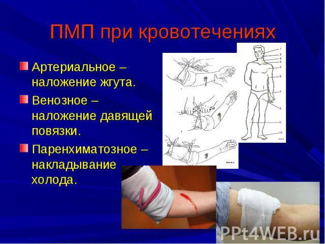 ПМП при кровотечениях Артериальное – наложение жгута.Венозное – наложение давящей повязки.Паренхиматозное – накладывание холода.