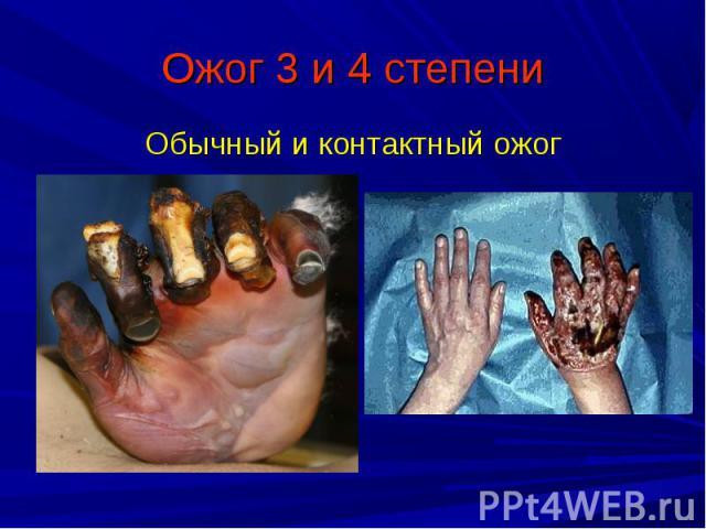 Ожог 3 и 4 степени Обычный и контактный ожог