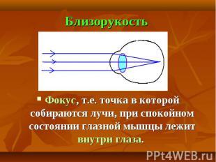 Близорукость Фокус, т.е. точка в которой собираются лучи, при спокойном состояни