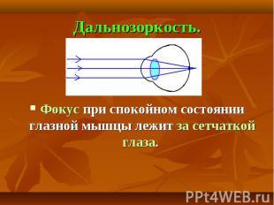 Дальнозоркость. Фокус при спокойном состоянии глазной мышцы лежит за сетчаткой г