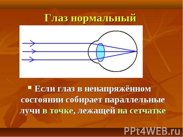 Глаз нормальный Если глаз в ненапряжённом состоянии собирает параллельные лучи в точке, лежащей на сетчатке