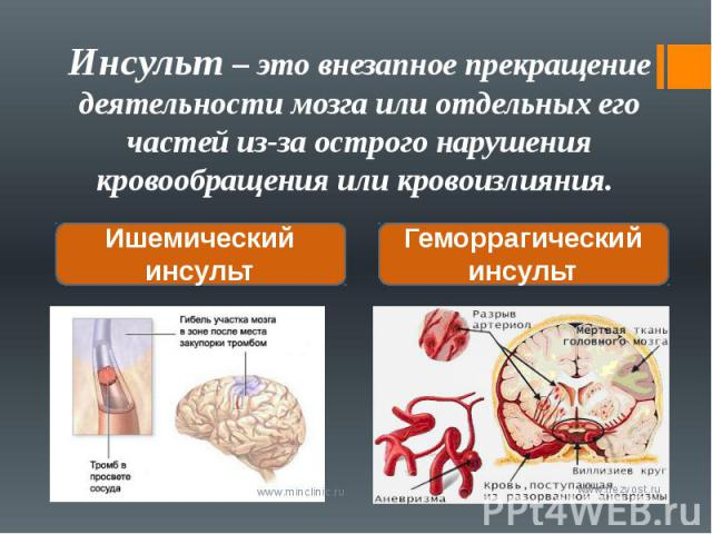 Инсульт – это внезапное прекращение деятельности мозга или отдельных его частей из-за острого нарушения кровообращения или кровоизлияния.