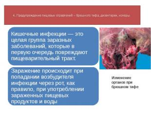 4. Предупреждение пищевых отравлений – брюшного тифа, дизентерии, холеры. Кишечн