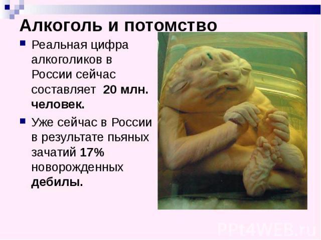 Алкоголь и потомство Реальная цифра алкоголиков в России сейчас составляет 20 млн. человек. Уже сейчас в России в результате пьяных зачатий 17% новорожденных дебилы.