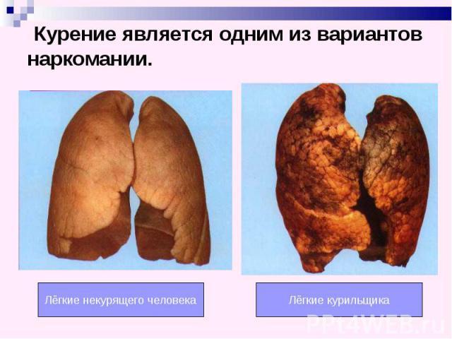 Курение является одним из вариантов наркомании. Лёгкие некурящего человека Лёгкие курильщика