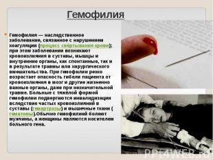 Гемофилия Гемофилия — наследственное заболевание, связанное с нарушением коагуля