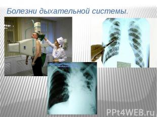 Болезни дыхательной системы.