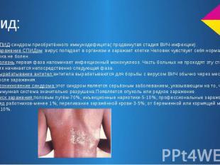 Спид: СПИД-синдром приобретённого иммунодефицита( продвинутая стадия ВИЧ-инфекци