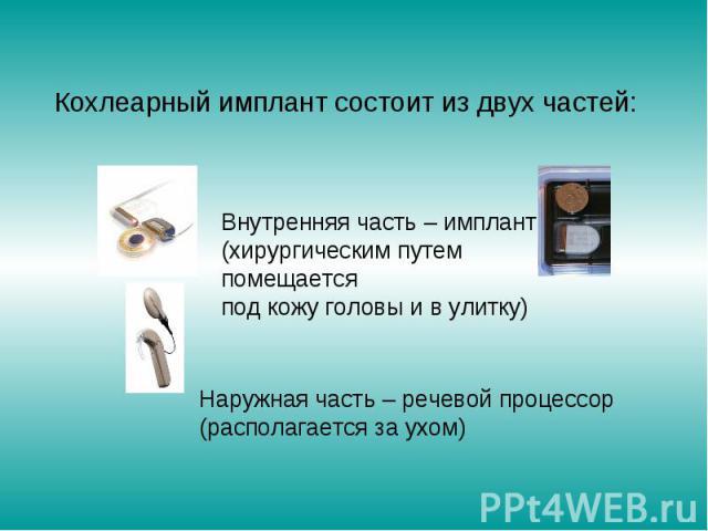 Кохлеарный имплант состоит из двух частей: Внутренняя часть – имплант (хирургическим путем помещается под кожу головы и в улитку)Наружная часть – речевой процессор (располагается за ухом)