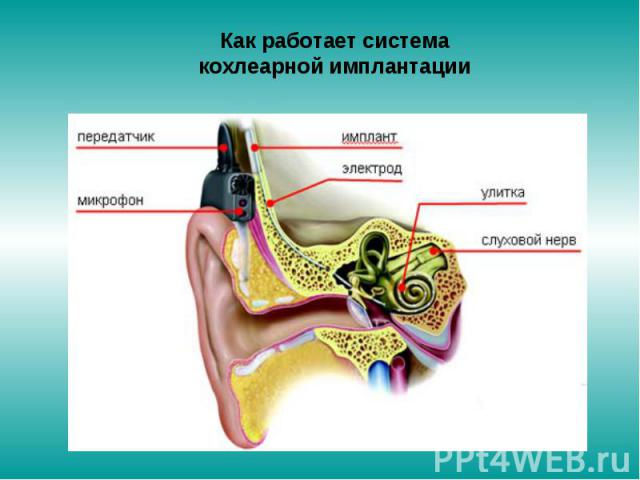 Как работает система кохлеарной имплантации