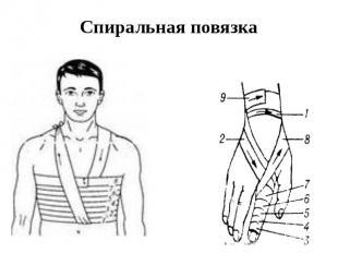 Спиральная повязка