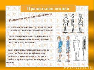 Правильная осанка Признаки правильной осанки: - голова приподнята, грудная клетк