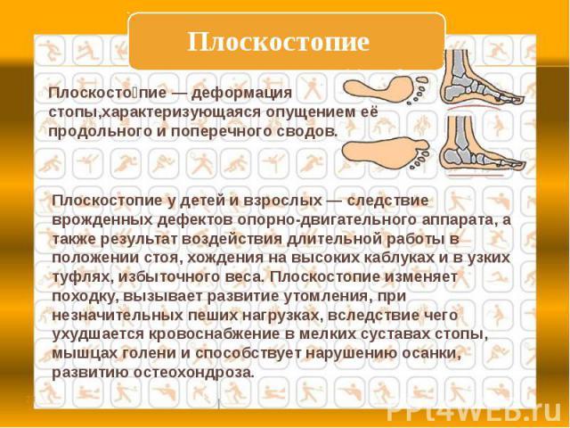 ПлоскостопиеПлоскостопие— деформация стопы,характеризующаяся опущением её продольного и поперечного сводов. Плоскостопие у детей и взрослых — следствие врожденных дефектов опорно-двигательного аппарата, а также результат воздействия длительной рабо…