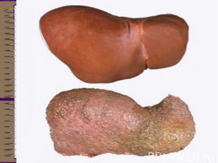 Ожирение печеночных клеток (жировая дистрофия) у людей, пристрастившихся к спирт