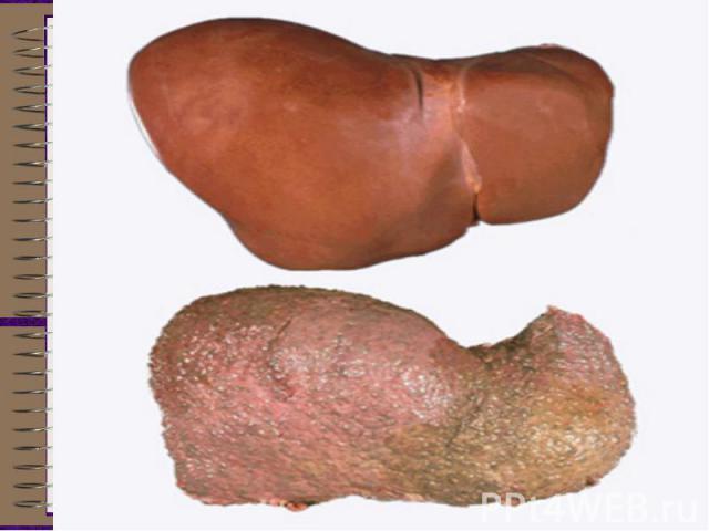 Ожирение печеночных клеток (жировая дистрофия) у людей, пристрастившихся к спиртному, наблюдается довольно часто. Все структурные - органеллы клетки - деформируются, цитоплазма почти целиком заполняется жиром, ядро смещается к периферии. Клетка увел…