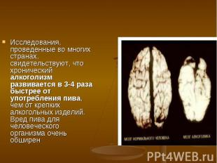 Исследования, проведенные во многих странах, свидетельствуют, что хронический ал