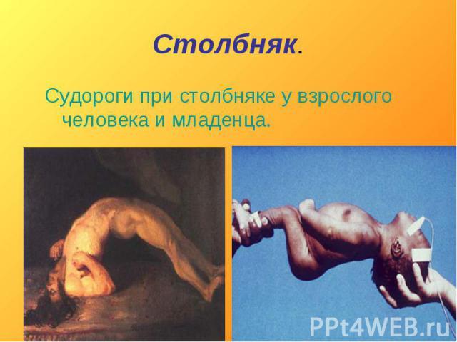 Столбняк. Судороги при столбняке у взрослого человека и младенца.