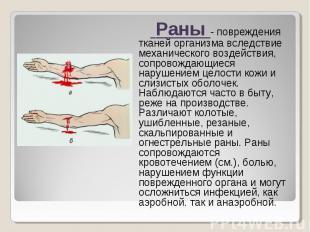 Раны - повреждения тканей организма вследствие механического воздействия, сопров