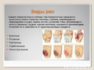 Виды ран Бывают поверхностные и глубокие. При поверхностных нарушается целостнос