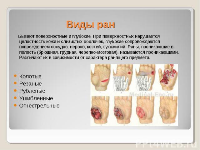 Виды ран Бывают поверхностные и глубокие. При поверхностных нарушается целостность кожи и слизистых оболочек, глубокие сопровождаются повреждением сосудов, нервов, костей, сухожилий. Раны, проникающие в полость (брюшная, грудная, черепно-мозговая), …