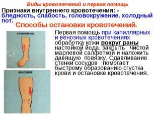 Виды кровотечений и первая помощьПризнаки внутреннего кровотечения: - бледность,