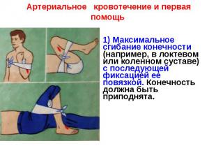 Артериальное кровотечение и первая помощь1) Максимальное сгибание конечности (на