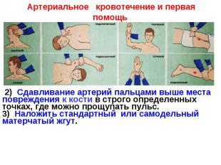 Артериальное кровотечение и первая помощь 2) Сдавливание артерий пальцами выше м
