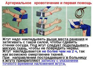 Артериальное кровотечение и первая помощьЖгут надо накладывать выше места ранени