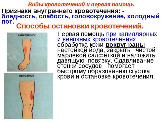 Виды кровотечений и первая помощьПризнаки внутреннего кровотечения: - бледность, слабость, головокружение, холодный пот. Способы остановки кровотечений. Первая помощь при капиллярных и венозных кровотечениях обработка кожи вокруг раны настойкой йода…