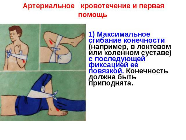 Артериальное кровотечение и первая помощь1) Максимальное сгибание конечности (например, в локтевом или коленном суставе) с последующей фиксацией ее повязкой. Конечность должна быть приподнята.