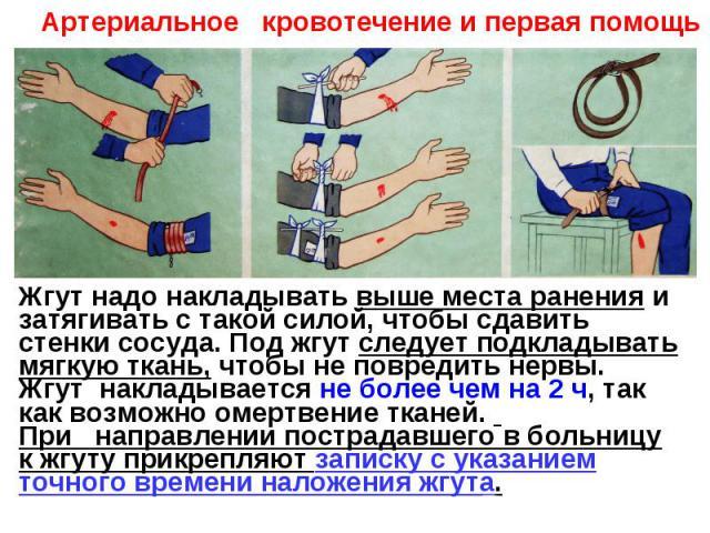Артериальное кровотечение и первая помощьЖгут надо накладывать выше места ранения и затягивать с такой силой, чтобы сдавить стенки сосуда. Под жгут следует подкладывать мягкую ткань, чтобы не повредить нервы.Жгут накладывается не более чем на 2 ч, т…