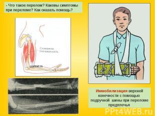 - Что такое перелом? Каковы симптомы при переломе? Как оказать помощь? Иммобилиз