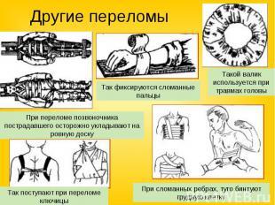 Другие переломы Так фиксируются сломанные пальцыПри переломе позвоночника постра