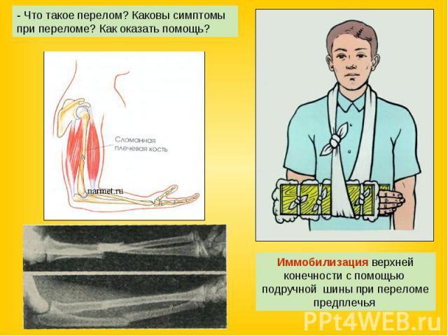 - Что такое перелом? Каковы симптомы при переломе? Как оказать помощь? Иммобилизация верхней конечности с помощью подручной шины при переломе предплечья