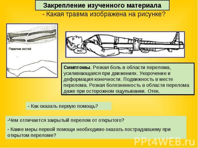 Закрепление изученного материала - Какая травма изображена на рисунке?Симптомы. Резкая боль в области перелома, усиливающаяся при движениях. Укорочение и деформация конечности. Подвижность в месте перелома. Резкая болезненность в области перелома да…