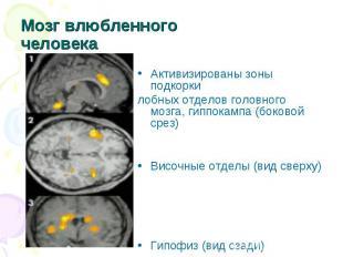 Мозг влюбленного человека Активизированы зоны подкоркилобных отделов головного м