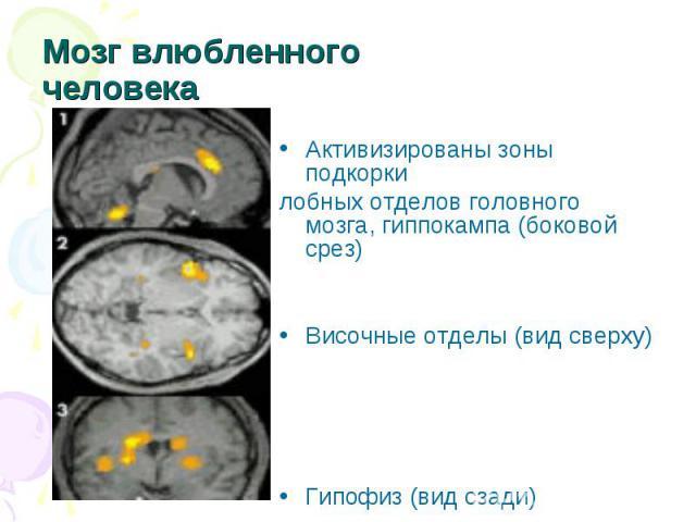 Мозг влюбленного человека Активизированы зоны подкоркилобных отделов головного мозга, гиппокампа (боковой срез)Височные отделы (вид сверху)Гипофиз (вид сзади)
