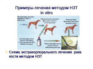 Примеры лечения методом НЗТin vitroСхема экстракорпорального лечения рака кости