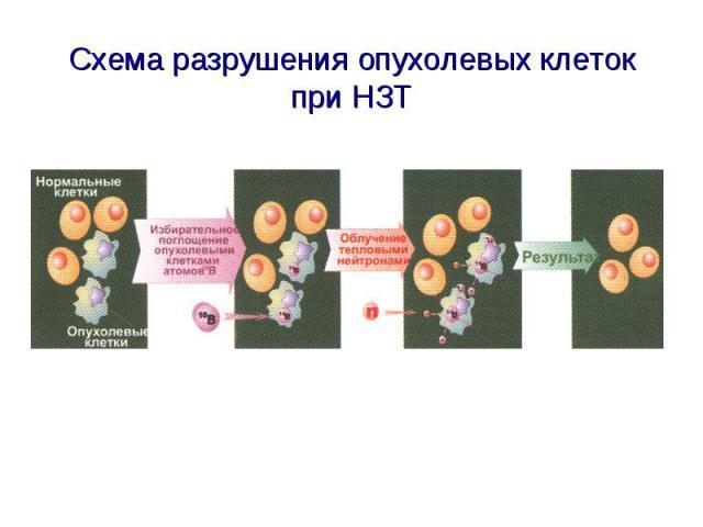 Схема разрушения опухолевых клеток при НЗТ