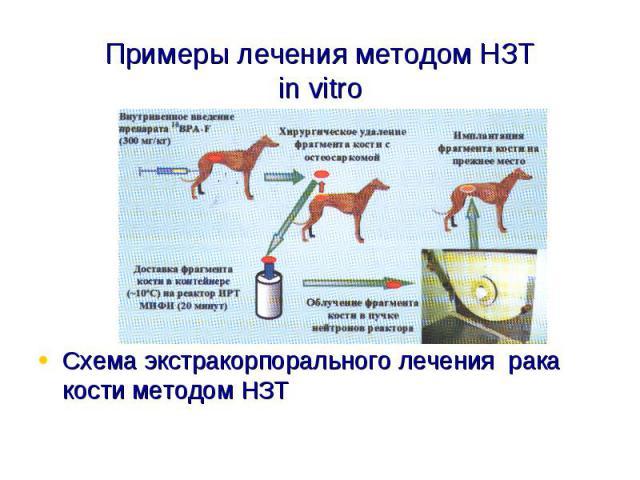 Примеры лечения методом НЗТin vitroСхема экстракорпорального лечения рака кости методом НЗТ