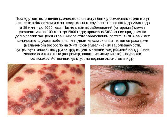 Последствия истощения озонового слоя могут быть угрожающими, они могут привести к более чем 3 млн. смертельных случаев от рака кожи до 2030 года и 19 млн. - до 2060 года. Число глазных заболеваний (катаракты) может увеличиться на 130 млн. до 2060 го…
