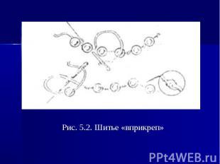 Рис. 5.2. Шитье «вприкреп»