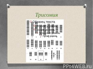 Трисомия