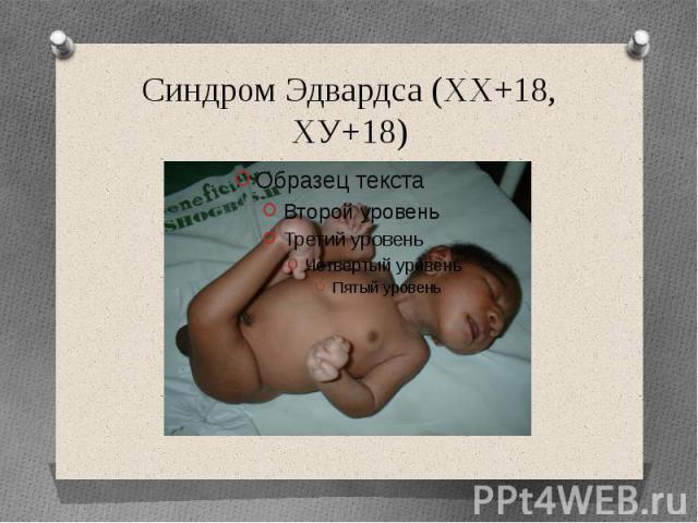 Синдром Эдвардса (ХХ+18, ХУ+18)