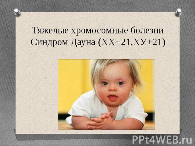 Тяжелые хромосомные болезниСиндром Дауна (ХХ+21,ХУ+21)