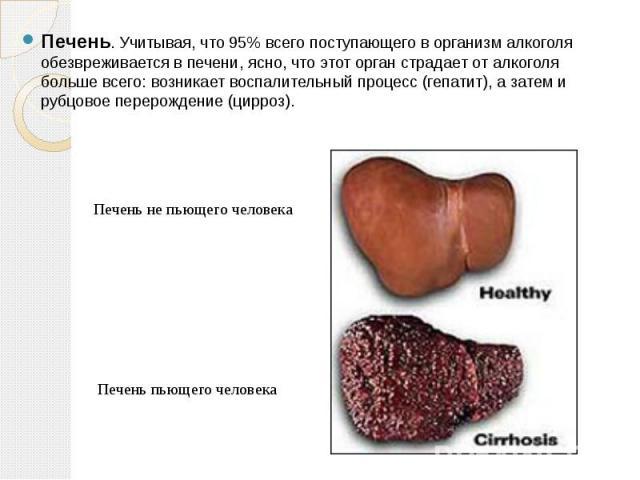 Печень. Учитывая, что 95% всего поступающего в организм алкоголя обезвреживается в печени, ясно, что этот орган страдает от алкоголя больше всего: возникает воспалительный процесс (гепатит), а затем и рубцовое перерождение (цирроз). Печень не пьющег…